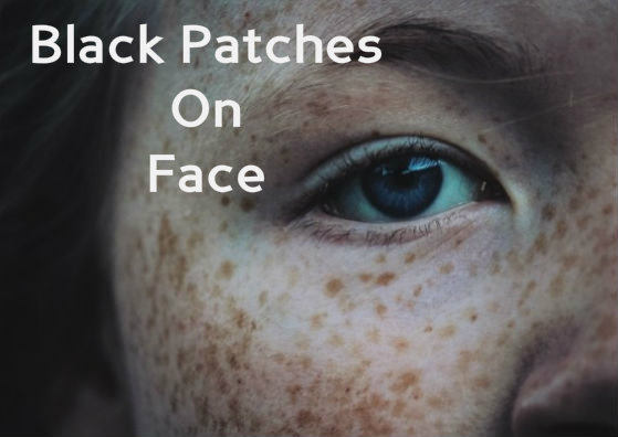 black patches on face_face