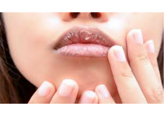 ways to make lips red-lifestylica