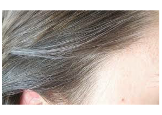 Grey hair causes-lifestylica