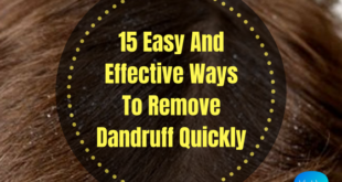 how to remove dandruff quickly lifestylica