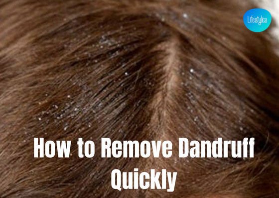 how to remove danruff quickly - lifestylica