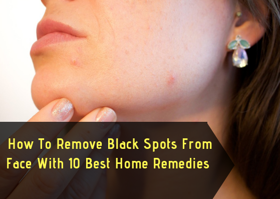 how to remove black spots - lifestylica